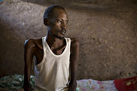 A patient with tuberculosis sits on a bed in 'Tuberculosis Village,' a separate health facility at a clinic run by the medical charity Doctors Without Borders, in the town of Nasir in southeastern Sudan. Along with malaria, tuberculosis is one of the leading killers in Africa, (File June 20, 2009).